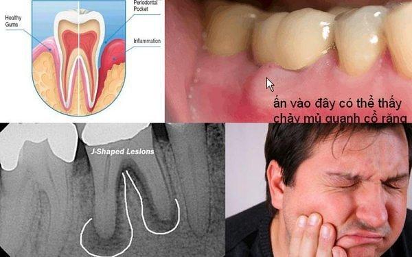 Bọc răng sứ bị áp xe phải điều trị như thế nào?