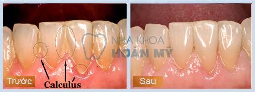 Làm răng sứ có ảnh hưởng gì đến sức khỏe?