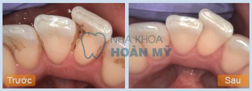 Lấy cao răng có làm chân răng khít lại hay không?