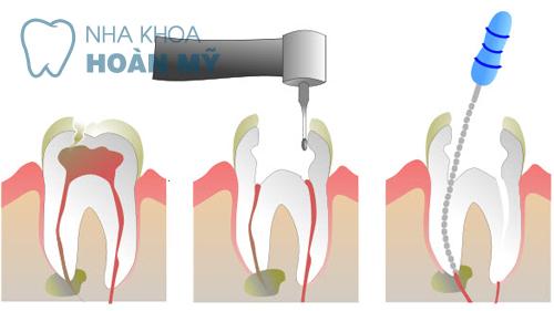 Lấy tủy răng một lần có hết viêm nhiễm không?