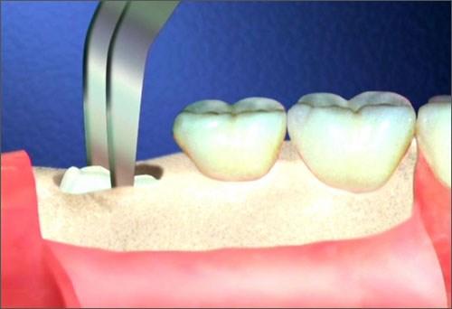 Nhổ răng số 8 hết bao nhiêu tiền là chuẩn?1