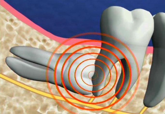 nguy hiểm khi nhổ răng số 8