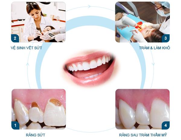 Quy trình hàn răng sâu tại nha khoa Paris