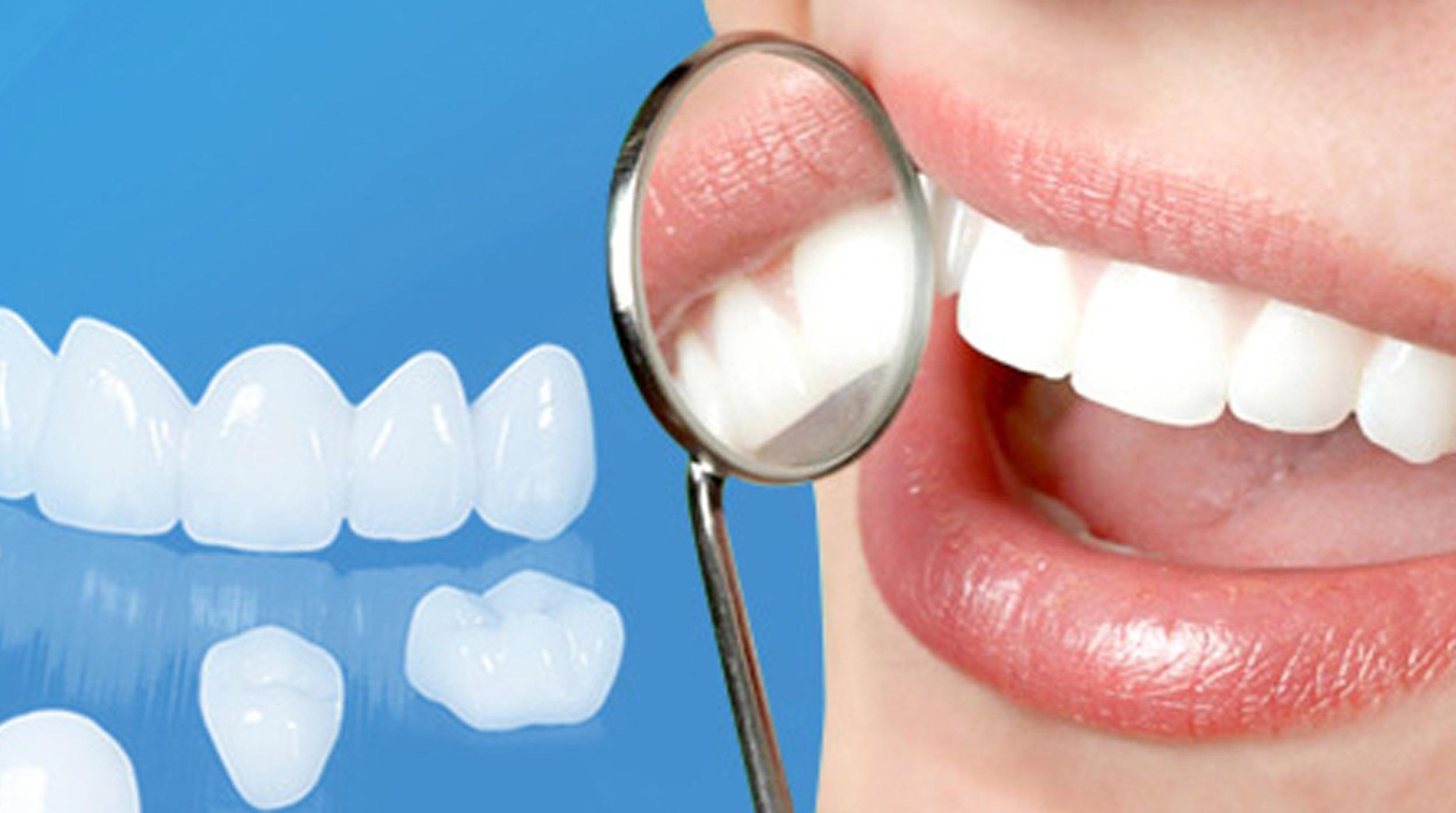 Những điều cần biết về Làm răng sứ Cercon 2