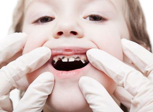 Răng sữa bị sâu có nên hàn hay không?