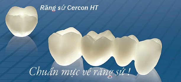 Những điều cần biết về Làm răng sứ Cercon
