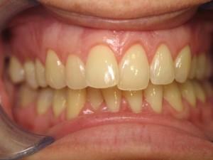 Răng bị vàng làm sao cho trắng tự nhiên? 1
