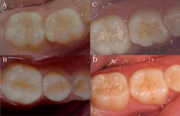Bệnh sâu răng ở trẻ em và cách điều trị triệt để 2