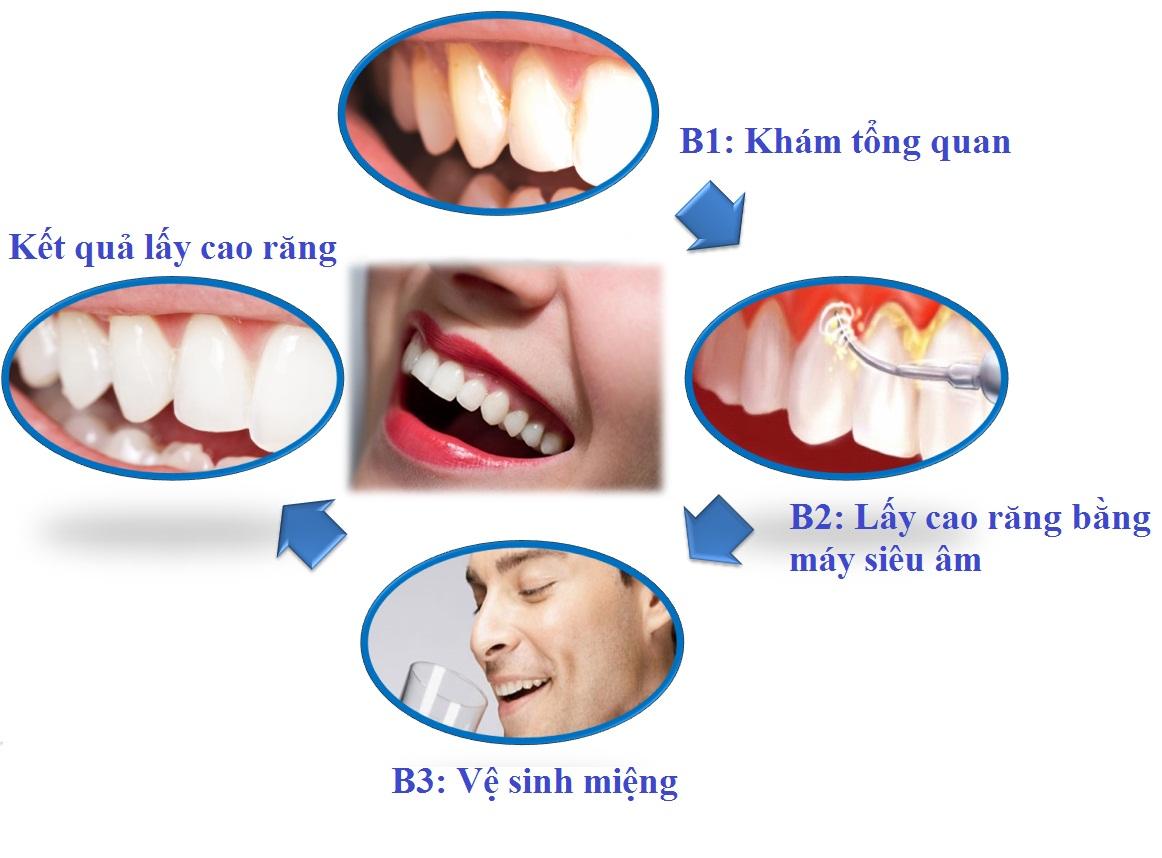 Lấy cao răng ở đâu không đau và đảm bảo an toàn nhất? 4