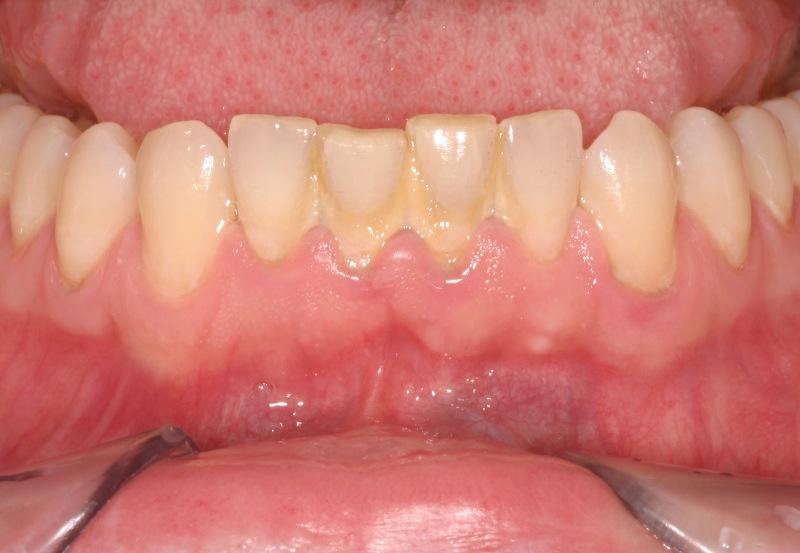 Lấy cao răng ở đâu không đau và đảm bảo an toàn nhất? 1