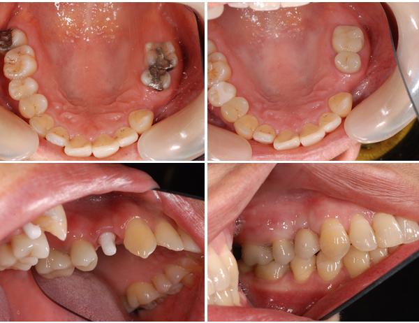 Nguyên nhân nào gây nên tình trạng sâu răng? 2
