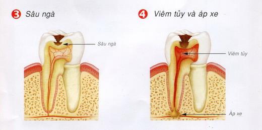 Nguyên nhân nào gây nên tình trạng sâu răng? 3