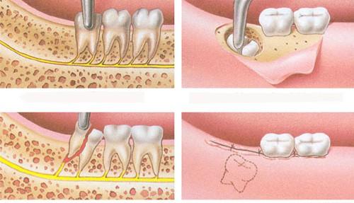 Nhổ răng số 8 khi nào?