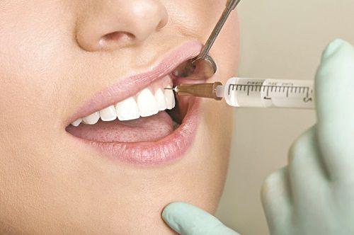 Nhổ răng số 8 ở đâu tốt và đảm bảo an toàn nhất? 2
