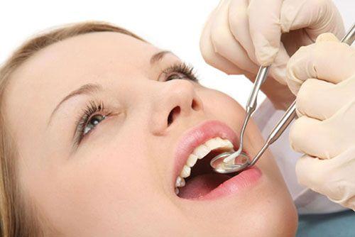 Răng sứ có tuổi thọ bao lâu là tối đa? Chuyên gia giải đáp