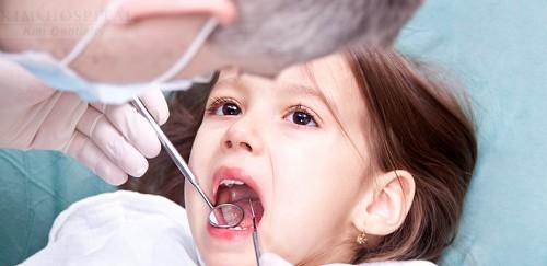 nhổ răng sâu cho trẻ
