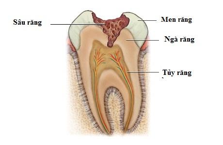Tư vấn khám sâu răng ở đâu tốt nhất?