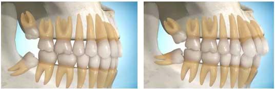 Răng khôn ở vị trí phức tạp, khó nhổ nên việc nhổ răng khôn an toàn không là lo lắng của nhiều người