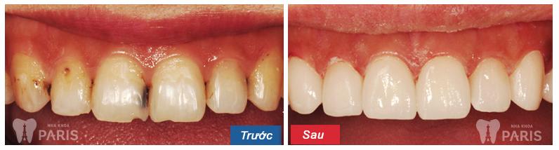 [Hỏi đáp] Răng cửa bị sâu có cách nào để chữa không?