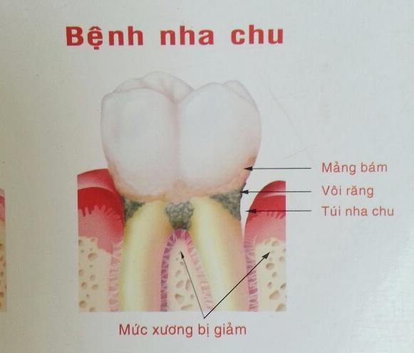 Bệnh nha chu và cách chữa trị hiệu quả