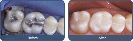 chi phí trám răng lấy tủy giá bao nhiêu