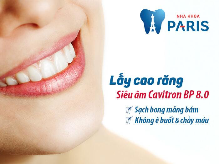 Lấy cao răng với máy siêu âm Cavitron 8.0