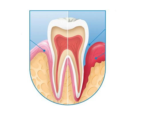 Bệnh viêm quanh cuống răng là gì? Nguyên nhân là gì?