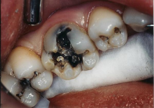 Răng bị sâu có nên nhổ không? – Giải đáp từ nha sĩ