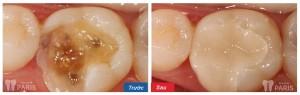 Chữa răng sâu ở đâu tốt nhất tại hà nội hiện nay?