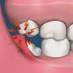 Có nên nhổ răng khôn không? Khi nào thích hợp nhổ?