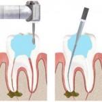 Lấy tủy răng bao nhiêu tiền là chuẩn nhất hiện nay?