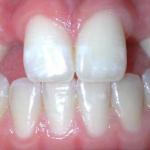 Tại sao bị nhức răng cửa? – Cách chữa hiệu quả nhất