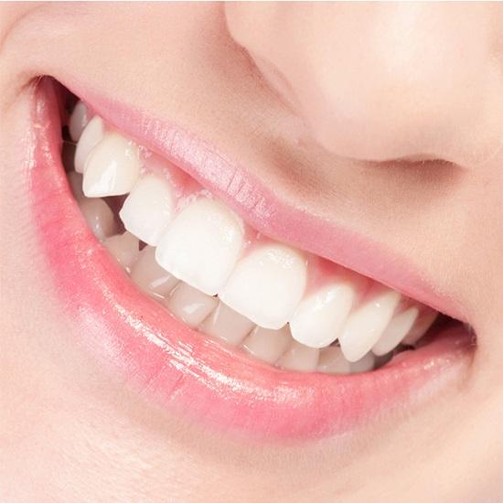 Tư vấn cách làm răng đều đẹp nhanh nhất đảm bảo trọn đời