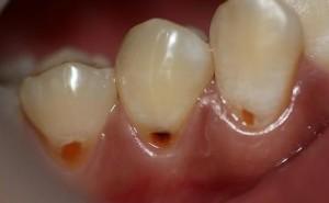 Bị sâu răng phải làm sao để điều trị hiệu quả triệt để?