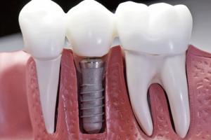 Cấy ghép răng implant có đau không , bao lâu thì lành?