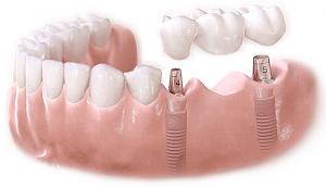 Trồng răng giả loại nào tốt và bền nhất hiện nay?