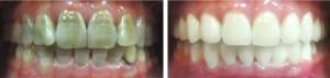 Cách tẩy trắng răng bị nhiễm tetracycline hiện nay