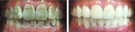 Top 4 cách tẩy trắng răng bị ố vàng hiệu quả nhất 5