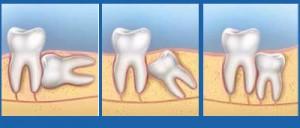 Giải đáp chi tiết 5 thắc mắc thường gặp về nhổ răng khôn 1