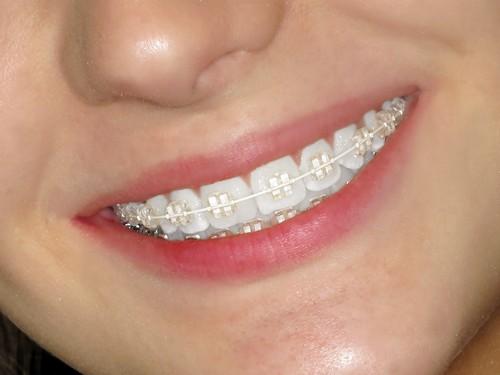 Ngạc nhiên với những tác dụng của niềng răng thẩm mỹ