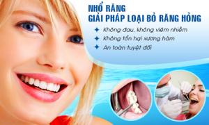 Nhổ răng hàm và 3 lưu ý quan trọng bạn không thể bỏ qua