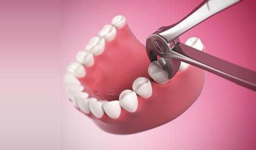 Có nên nhổ răng khôn bị sâu không?