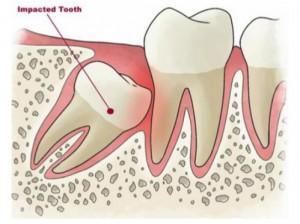 Giải đáp những thắc mắc cơ bản hay gặp về nhổ răng khôn 1
