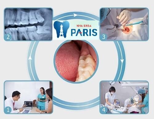 Quy trình nhổ răng sâu tại Nha khoa Paris theo tiêu chuẩn quốc tế