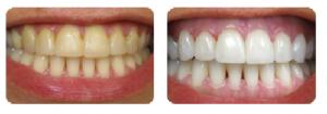 Tẩy trắng răng giá bao nhiêu tiền hợp lý nhất ?