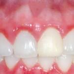 Nguyên nhân viêm chân răng và cách điều trị hiệu quả nhất