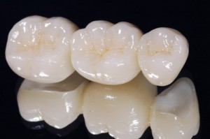 Cách làm đẹp răng bằng phương pháp nào hiệu quả?