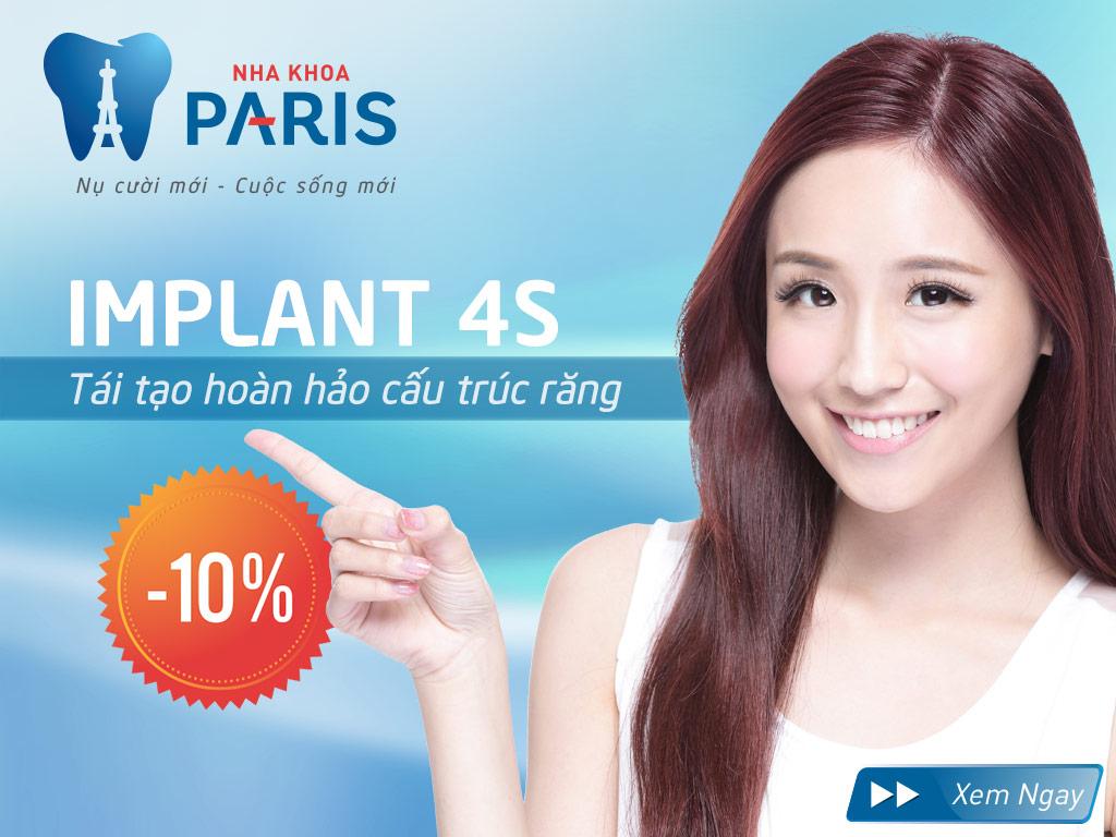 Toàn bộ thông tin đầy đủ về cấy ghép implant nha khoa tại Hà Nội