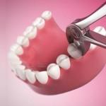 Giá tiền nhổ răng số 8 bao nhiêu là hợp lý nhất?