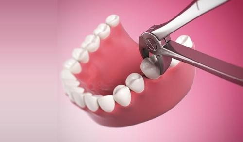 Nhổ răng số 8 hàm dưới có đau không?  1